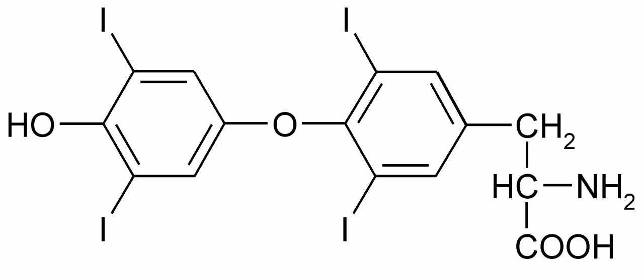 Тироцеле